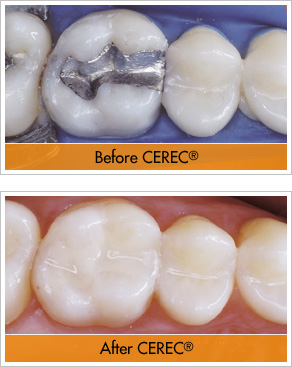 See the difference before and after having Cerec dental crowns